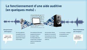 appareil auditif fonctionnement